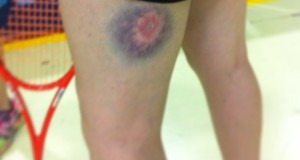 BLOG: Dives and Bumps and Bruises